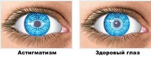 Отличие здорового глаза