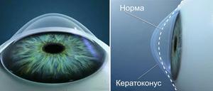 Как опрелеить болезнь глаз